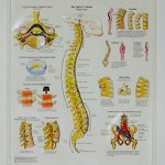 The Human Spine - Disorders Poster